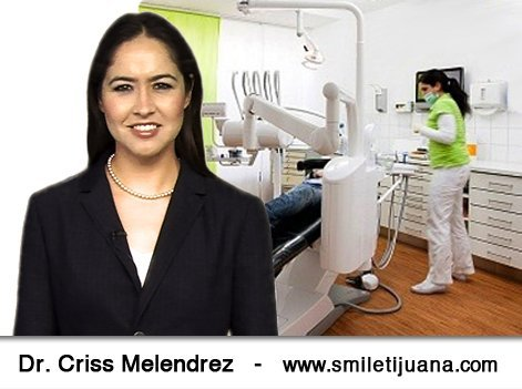 Smile Tijuana– Root Canal, Crowns & Implants