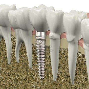 Single implant