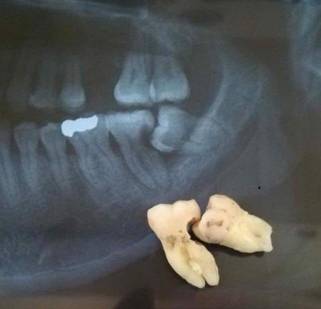 3rd-molar-extraction