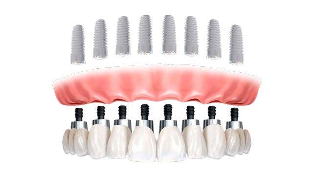 Implants Supported Porcelain Bridge 8 implants
