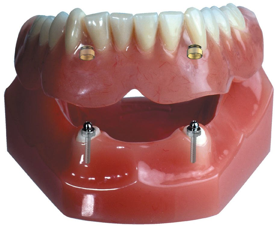 Implant Supported Overdenture 2 Implants