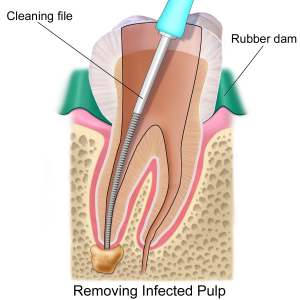 Procedure Root Canal