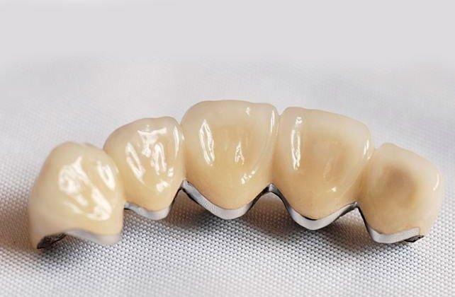 Pfm Bridge Dentist In Mexico