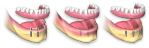 semi mobile dentures