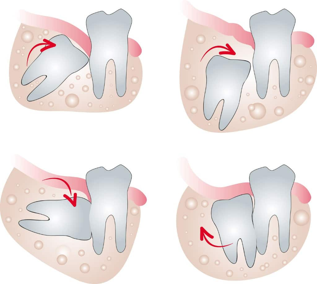 about-wisdom-tooth.jpg