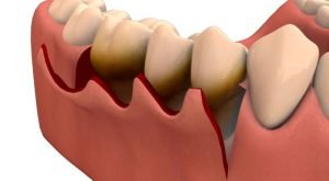 Gingival flap surgery