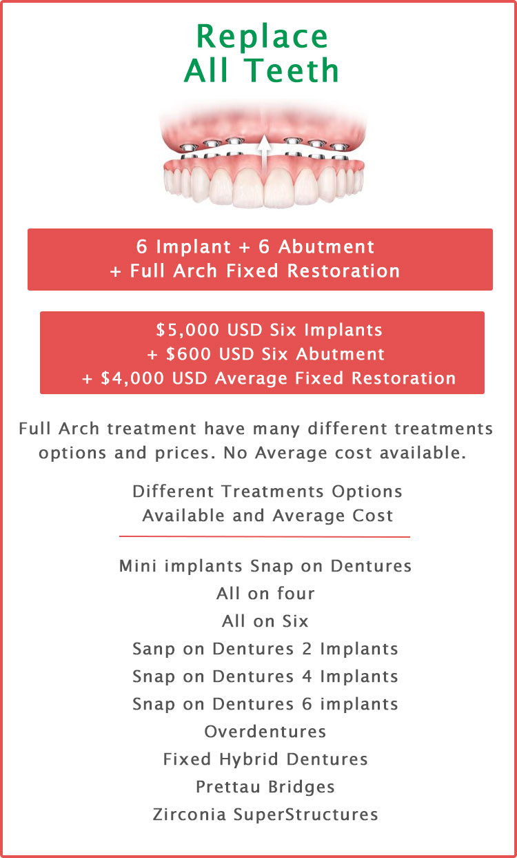 Replace all teeth