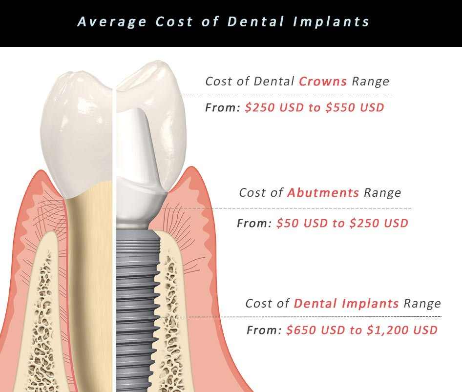 Dental Implants in Mexico - Cost Comparison Between ...