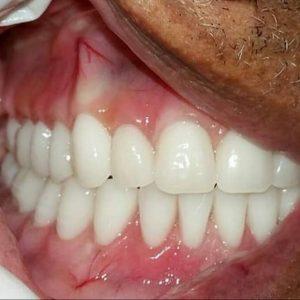 acrylic denture 2