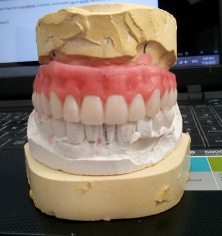 denture process3