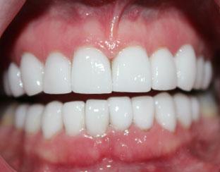 full mouth restoration