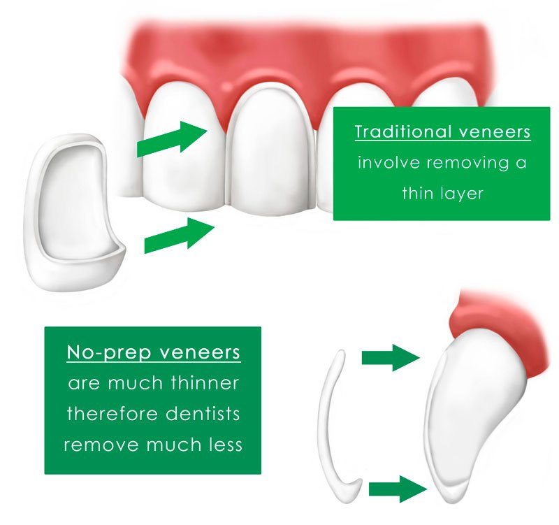 no-preps vs Traditional veneers