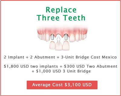 Replace three teeth
