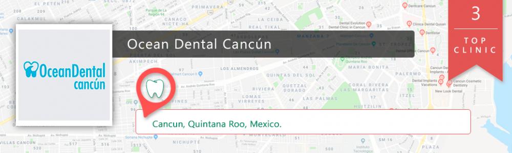 banner-top-3-cancun