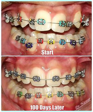 braces naser