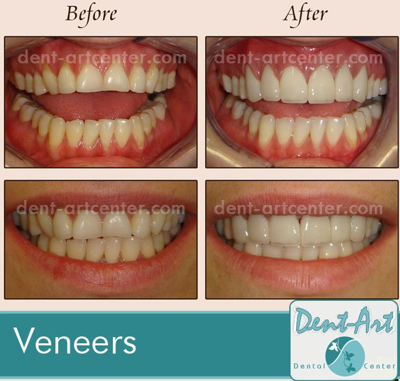 veneers-before-after1bb