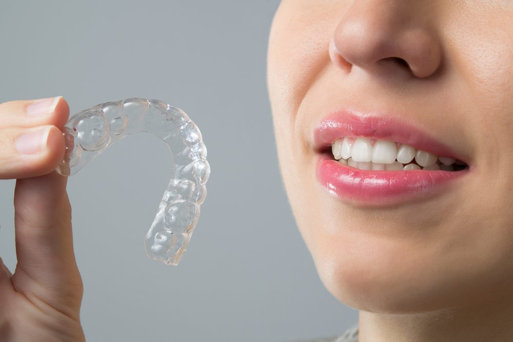 Teeth straightening using orthodontic braces