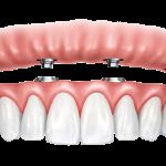 4 implants