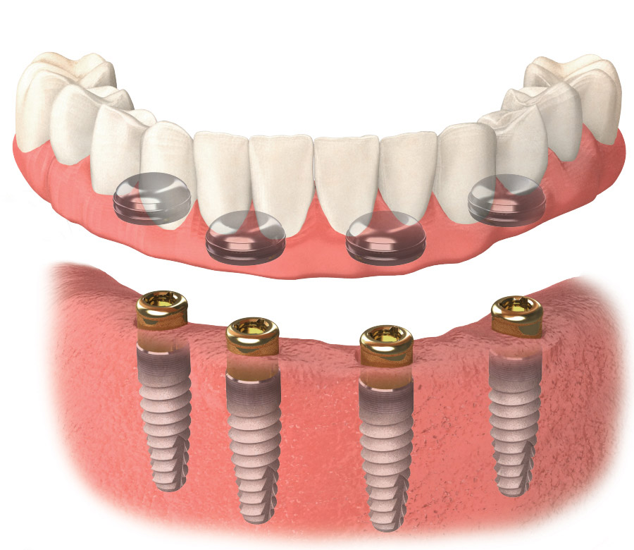 ImplantSupported Overdenture 4 Implants