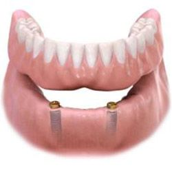 snap on denture