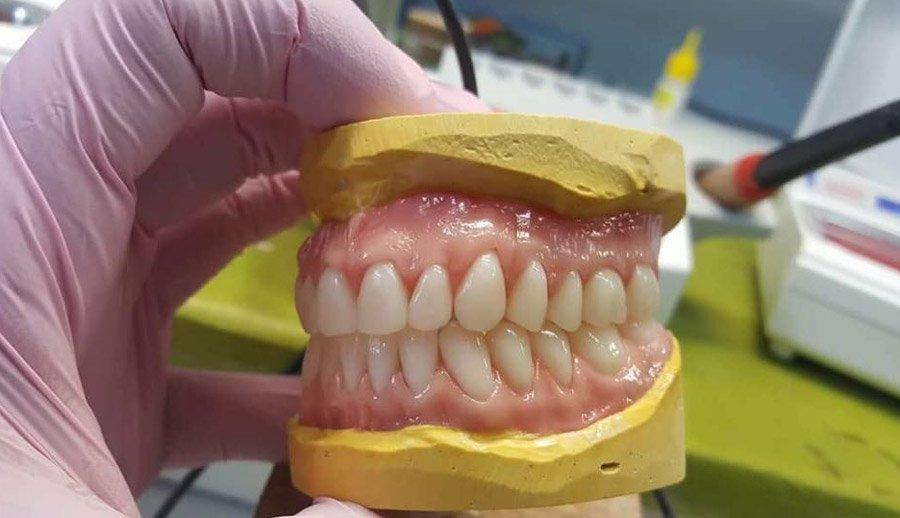 dental protesis