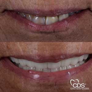 Beofre After - Cancun Dental Specialists