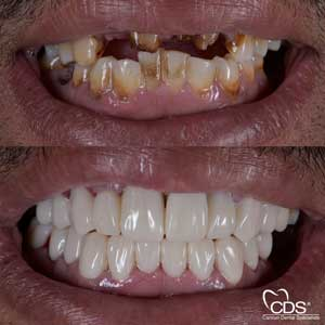 Before After - Cancun Dental Specialists