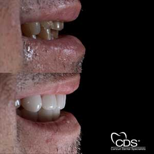 Before After Cancun Dental Specialists