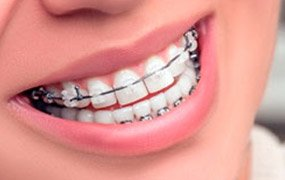 MEXICO DENTIST PRICES - Implants, Crowns, Braces, Veneers Costs