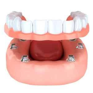 implant overdenture 2