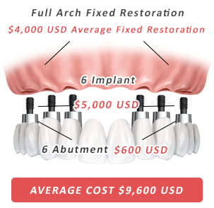 Six dental implants