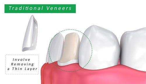 traditional veneers