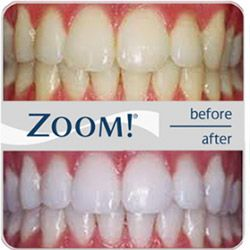 Zoom Teeth Whitening Prices Costs Information Dental Clinics